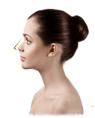 dermlaze-nose thread lift in Malaysia