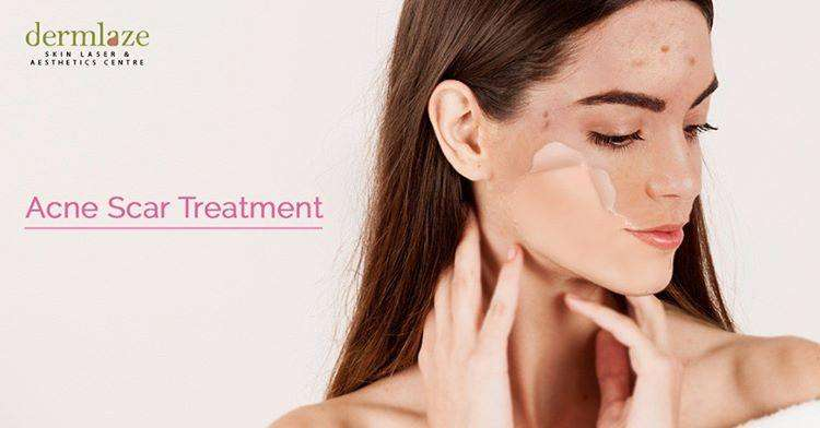 acne treatment effectiveness after microdermabrasion in Malaysia